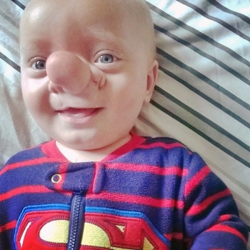 Hotspot Media Boy Whose Brain Grew In Nose Is Real Life